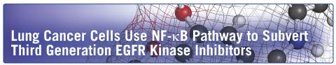NFKB_EGFR_KinaseInhibitors