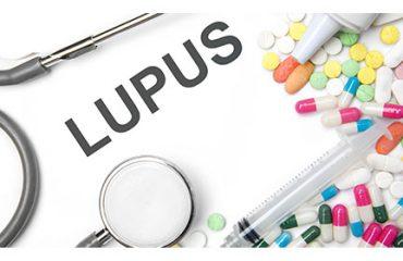 Lupus NIK Inhibitors