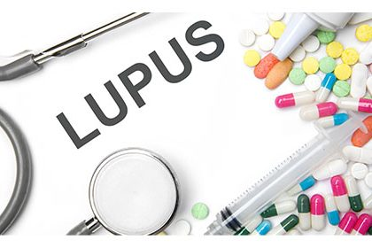 Lupus NIK Inhibitor