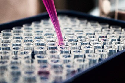 Performing an ATPase Enzyme Assay