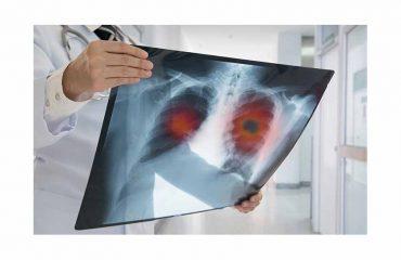 tyrosine kinase inhibitor lung cancer