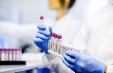 GMP Assay for PDE Inhibitor Discovery