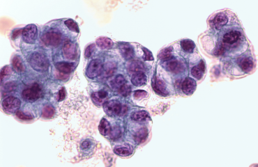 malignant adenocarcinoma could be treated by NUDT5 Inhibitors